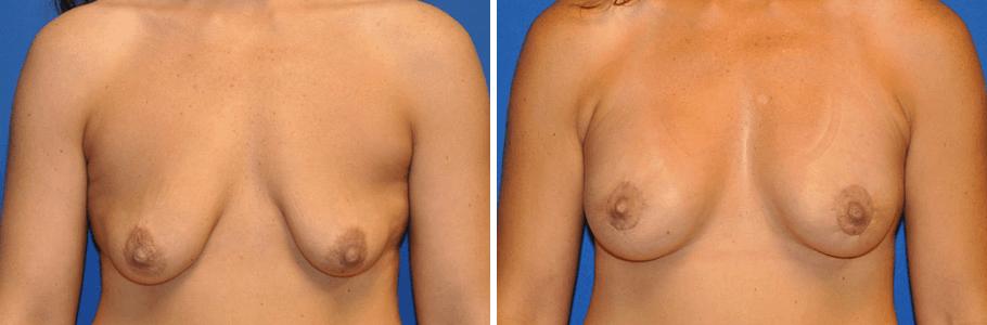 19974-breast-aug2