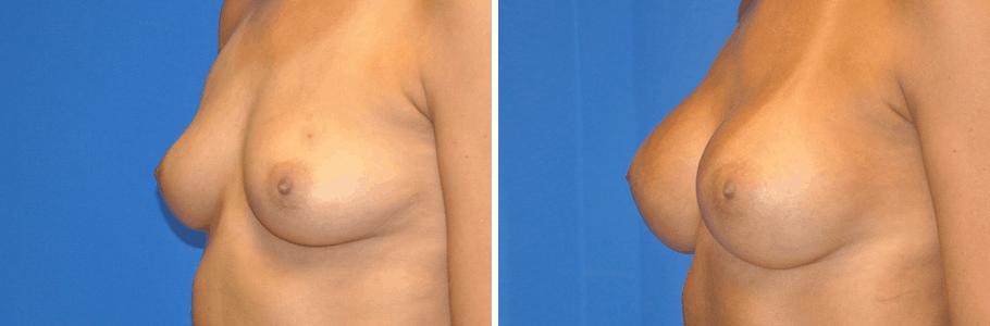 20165-breast-aug2