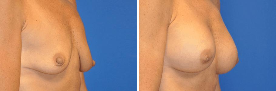 20188-breast-aug2