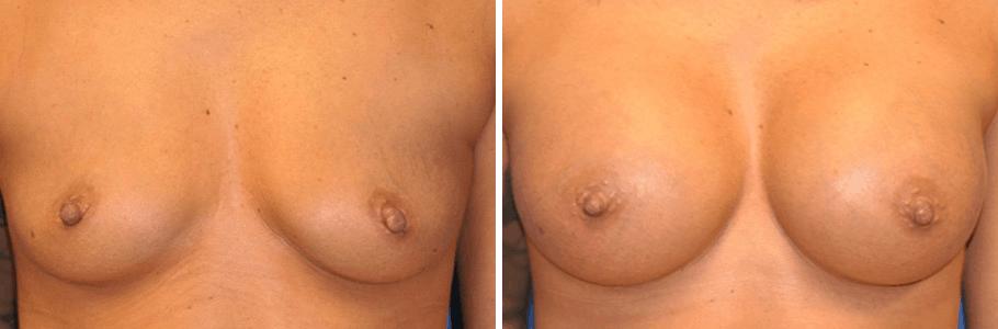 22784-breast-aug2