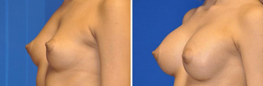 22834-breast-aug2