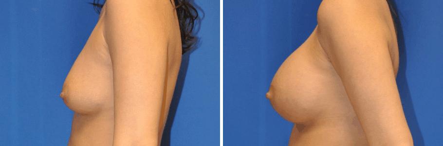 22890-breast-aug2