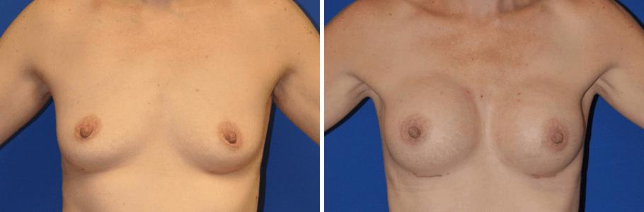 22973-breast-aug