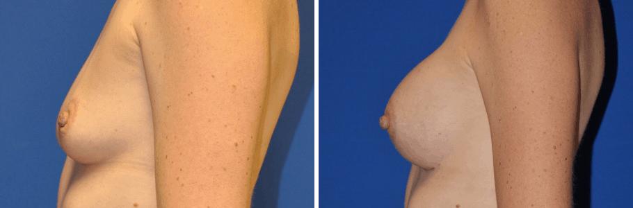 22973-breast-aug2