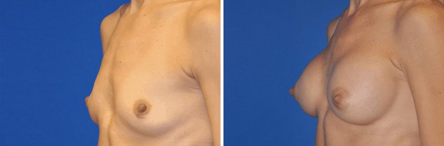 23127-breast-aug2
