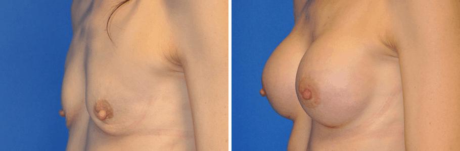 23176-breast-aug2