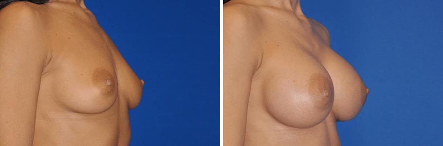23448-breast-aug3