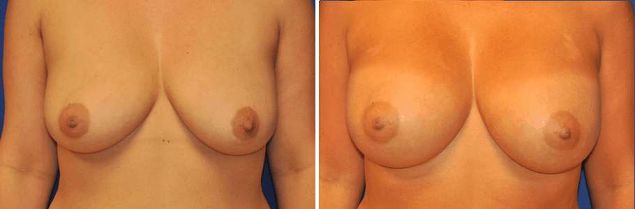 25395-breast-aug