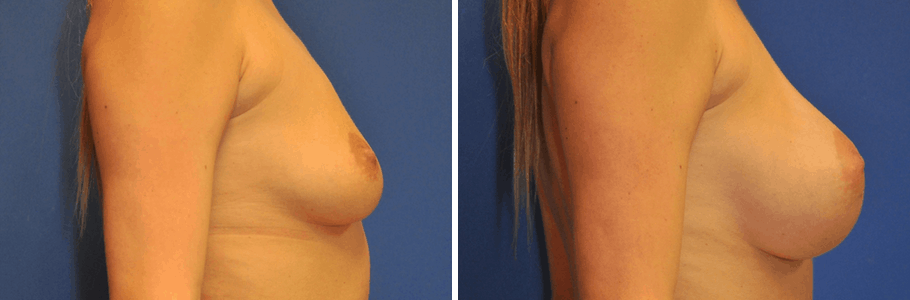26159-breast-aug3