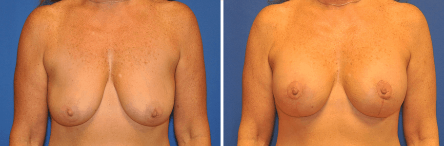 26579-breast-lift-F
