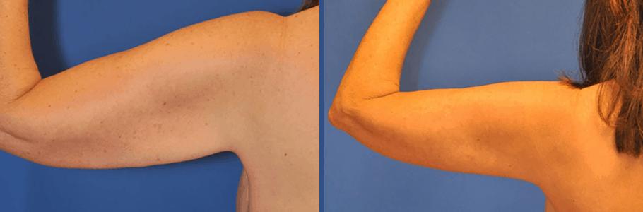 arm-lift-15506-back