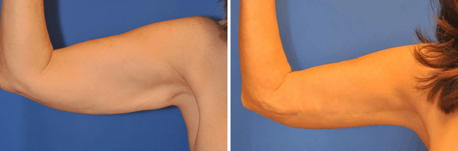 arm-lift-15506-in-left