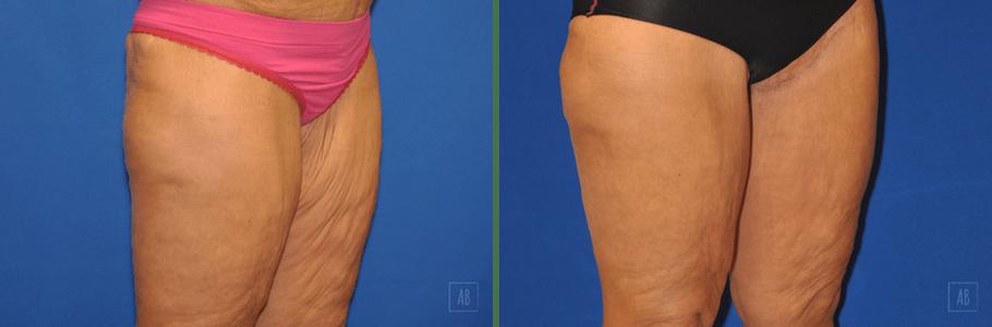 thigh-lift-26799-RQ1
