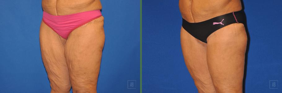 thigh-lift-26799-lq2