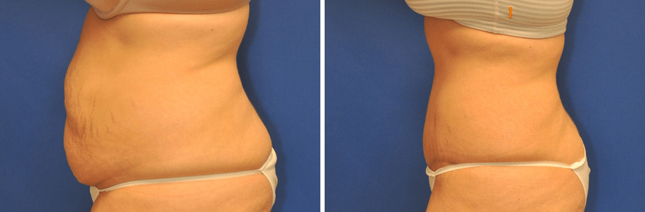 tummy-tuck-25362-left-ba