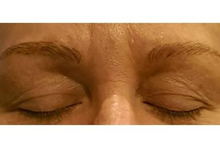 Microblading - The Center for Aesthetics and Plastic Surgery